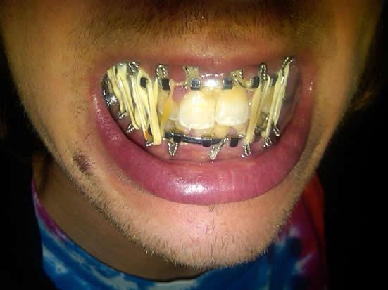 Image Gallery of Broken Jaw Wired Shut Eat